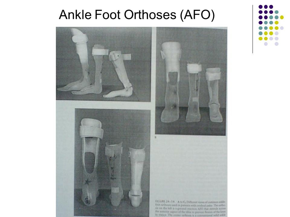 Ankle Foot Orthoses (AFO)