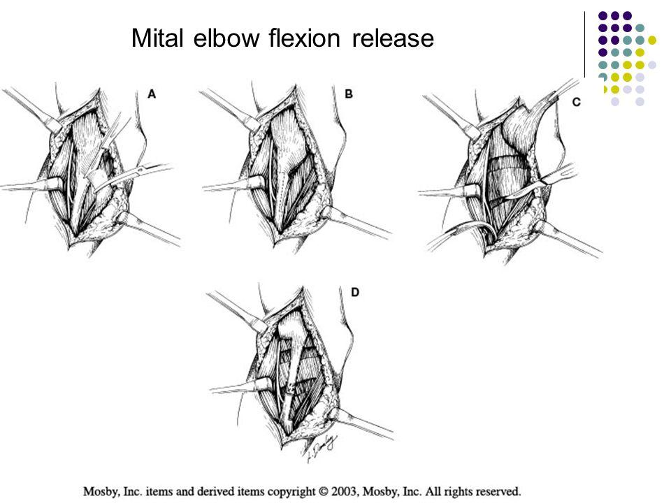Mital elbow flexion release