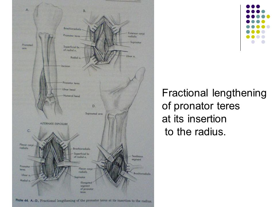 Fractional lengthening of pronator teres at its insertion to the radius.