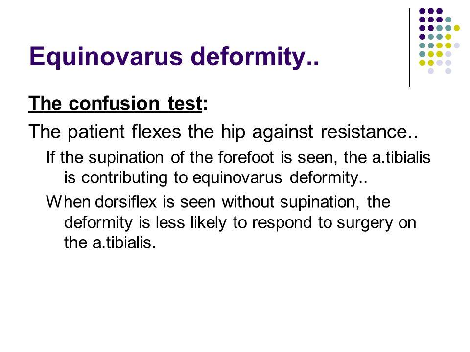 Equinovarus deformity..The confusion test: The patient flexes the hip against resistance..