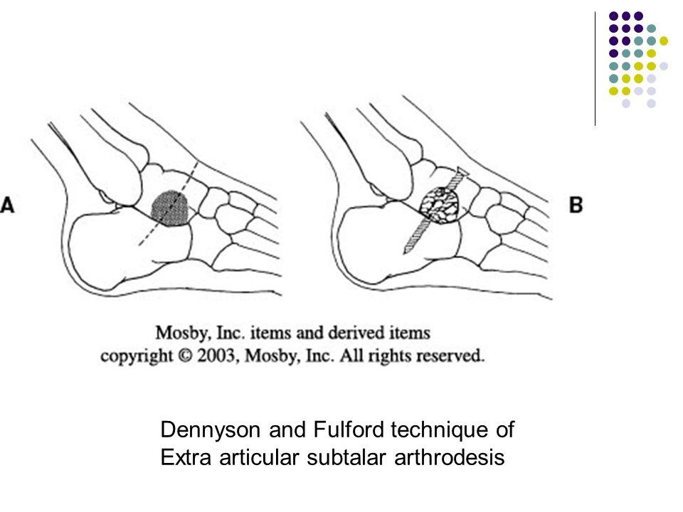 Dennyson and Fulford technique of Extra articular subtalar arthrodesis