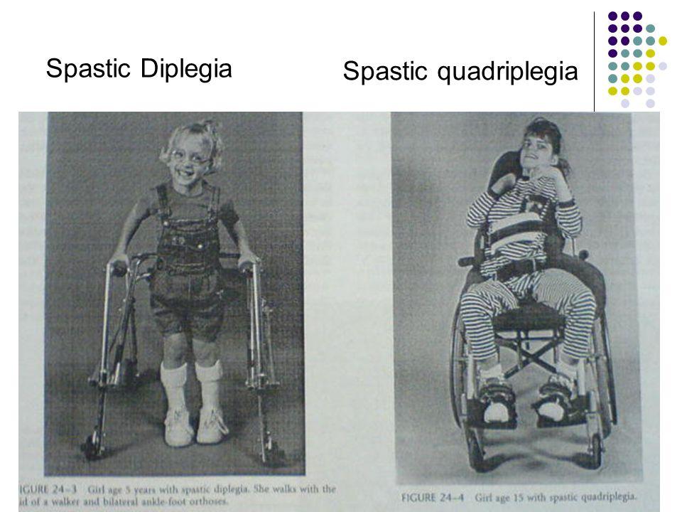 Spastic Diplegia Spastic quadriplegia