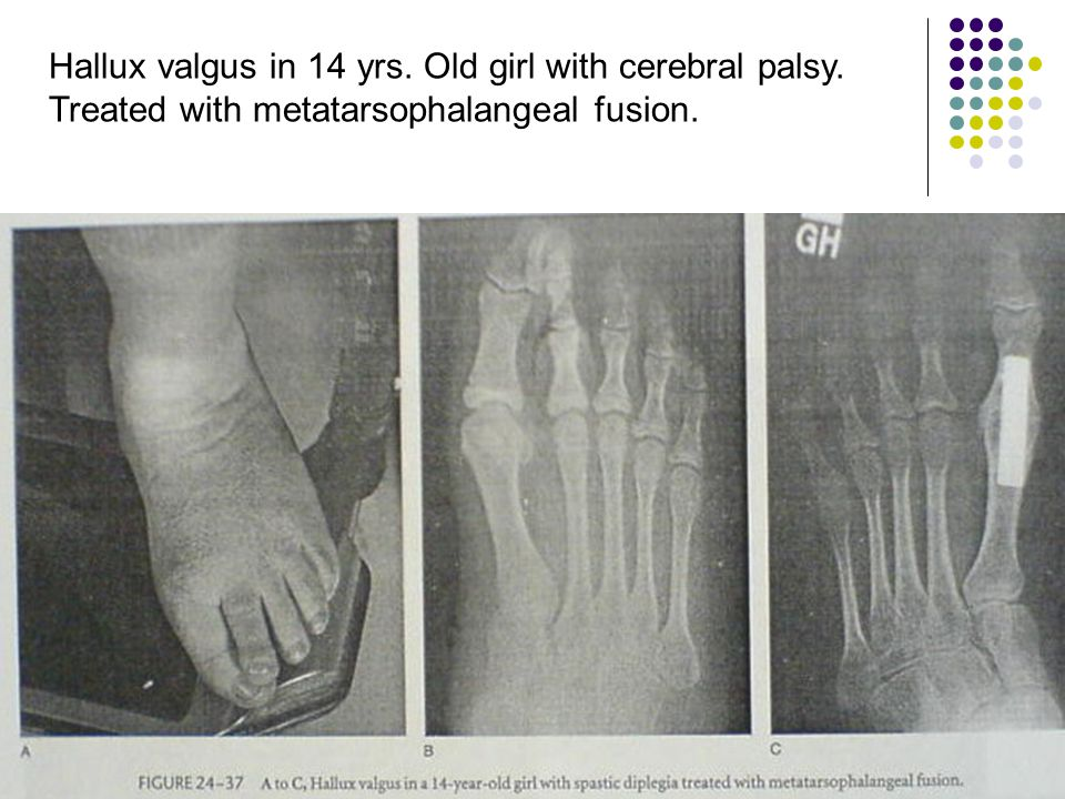 Hallux valgus in 14 yrs. Old girl with cerebral palsy. Treated with metatarsophalangeal fusion.