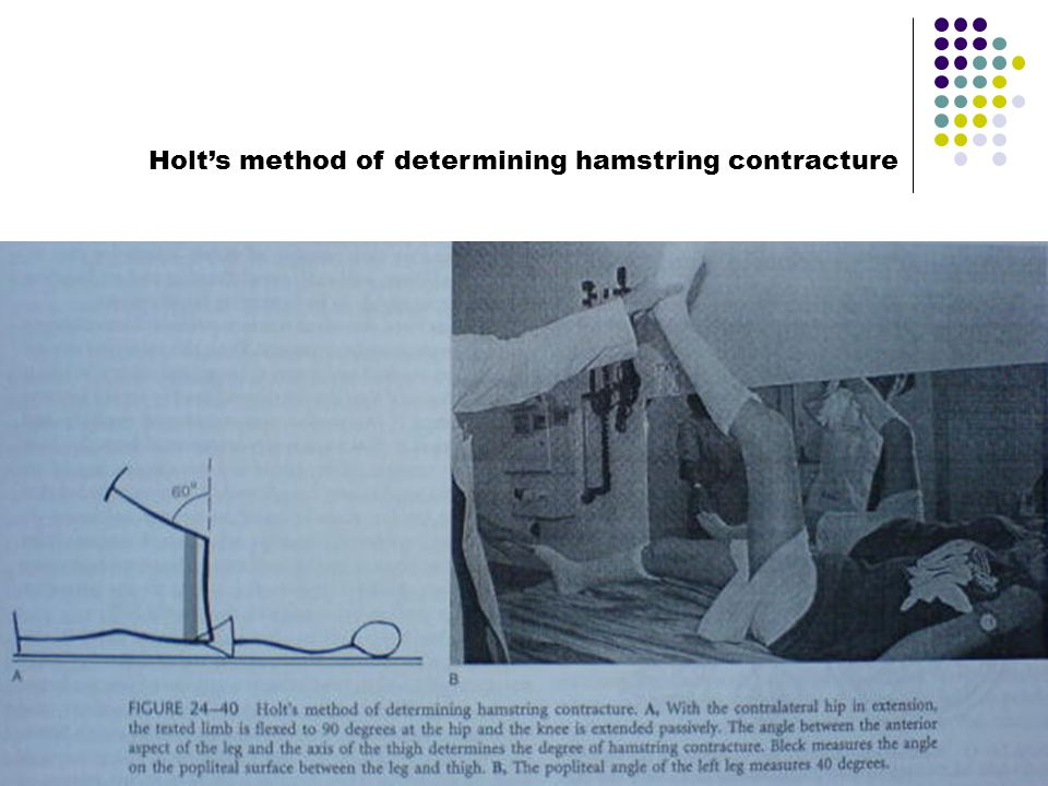 Holt's method of determining hamstring contracture