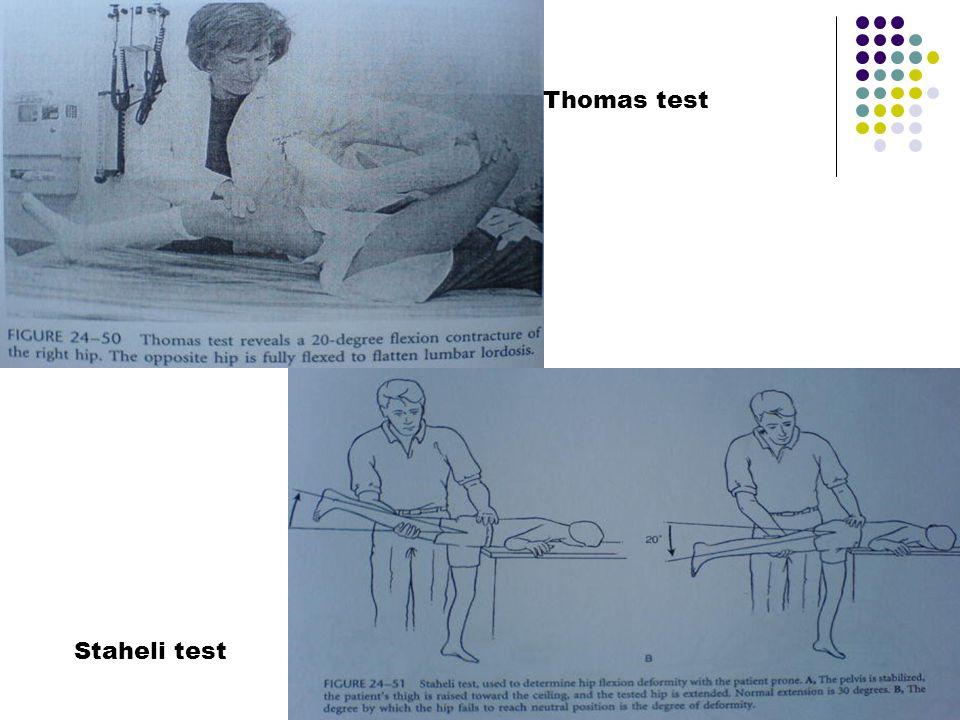 Thomas test Staheli test