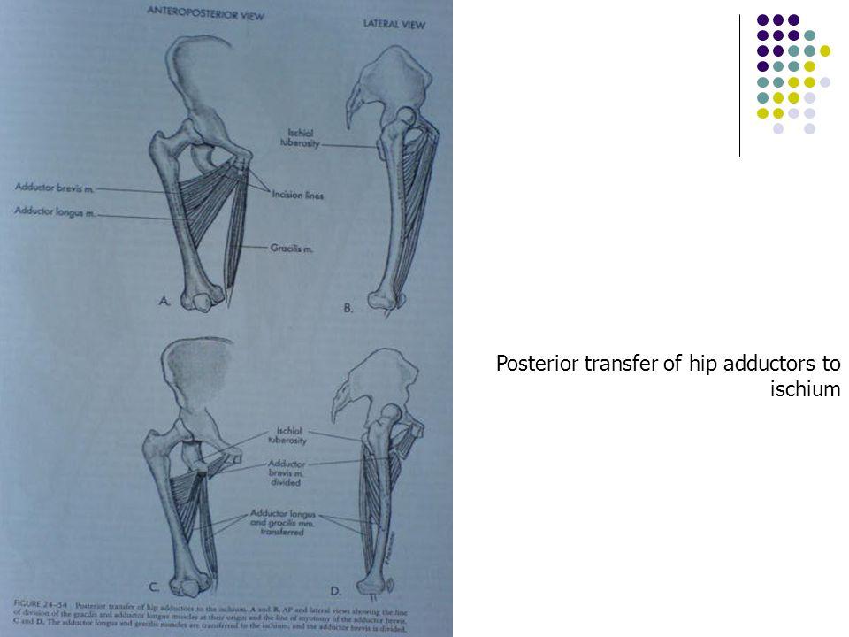 Posterior transfer of hip adductors to ischium