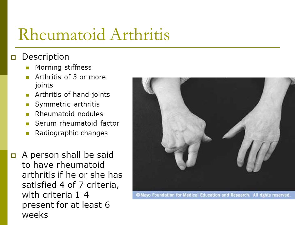 Rheumatoid Arthritis  Rheumatoid arthritis usually has a slow, insidious onset over weeks to months  About 15-20% of individuals have a more rapid onset that develops over days to weeks  About 8-15% actually have acute onset of symptoms that develop over days