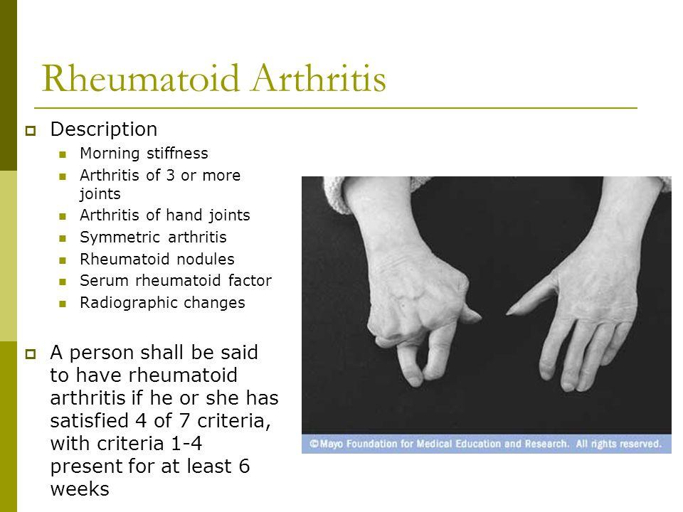Lupus Anatomy (cont).
