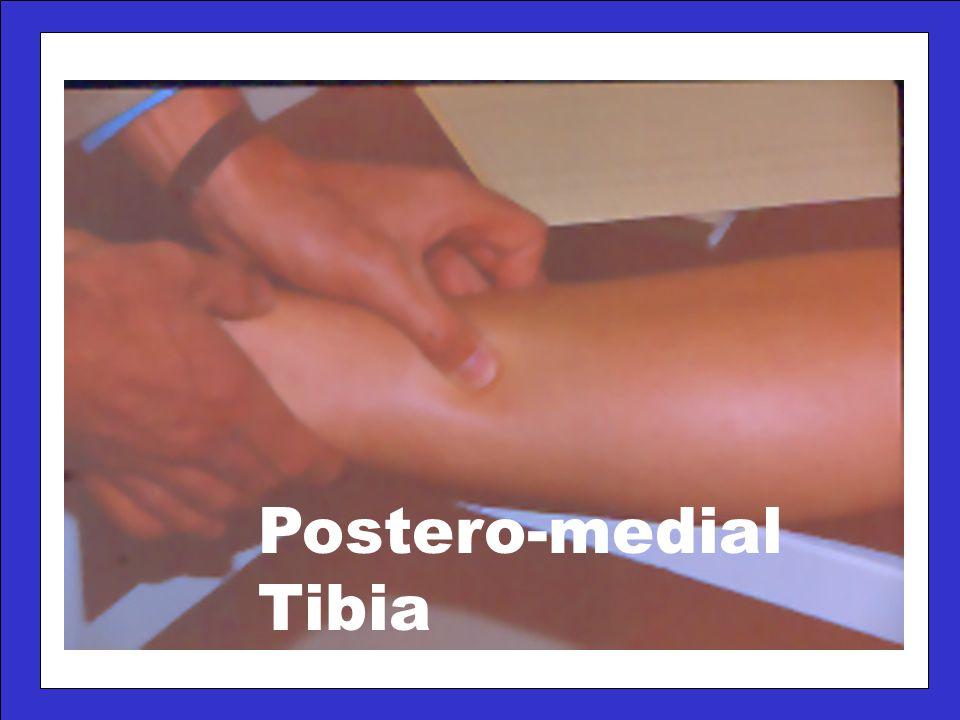 Postero-medial Tibia