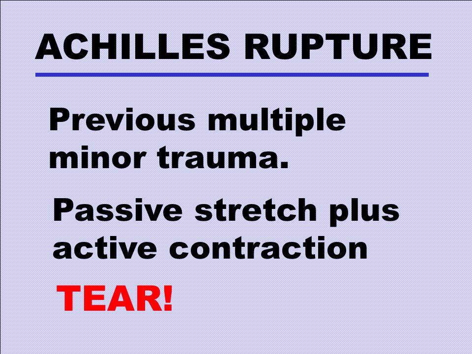 ACHILLES RUPTURE Previous multiple minor trauma. Passive stretch plus active contraction TEAR!