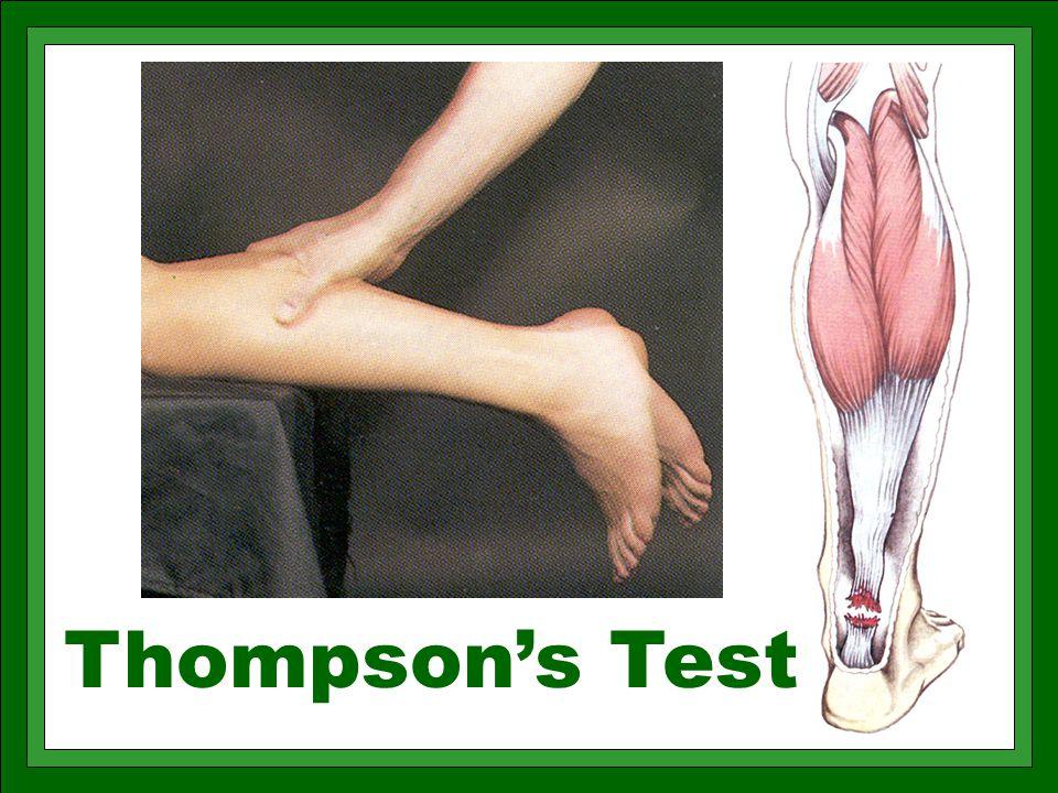 Thompson's Test