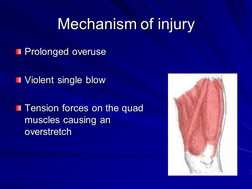 Mechanism of injury Prolonged overuse Violent single blow Tension forces on the quad muscles causing an overstretch