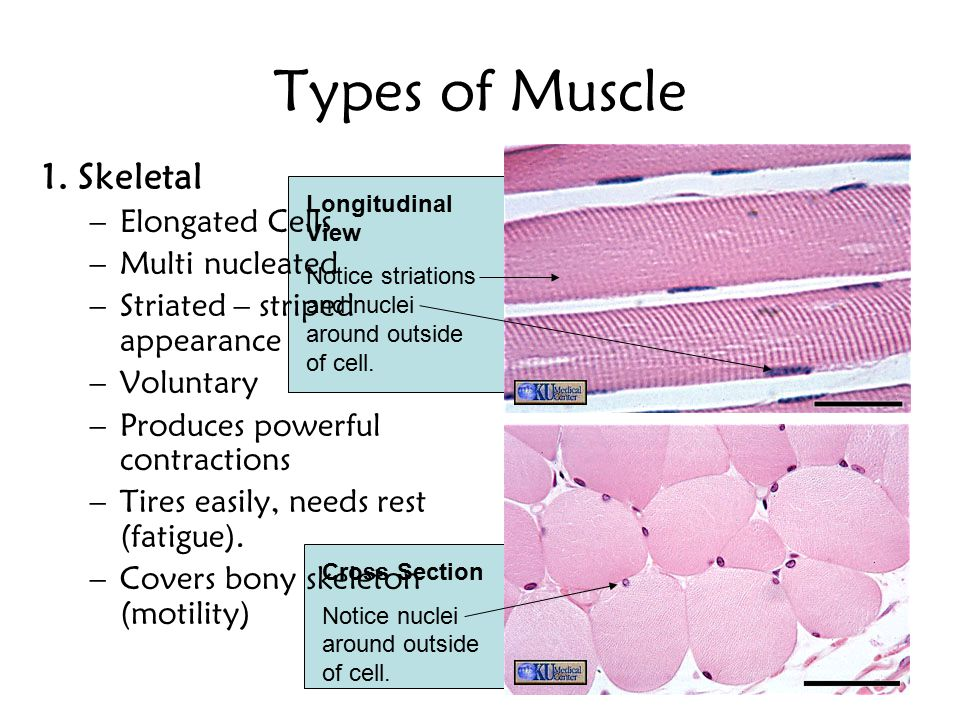 Types of Muscle 1. Skeletal –Elongated Cells –Multi nucleated –Striated – striped appearance –Voluntary –Produces powerful contractions –Tires easily,