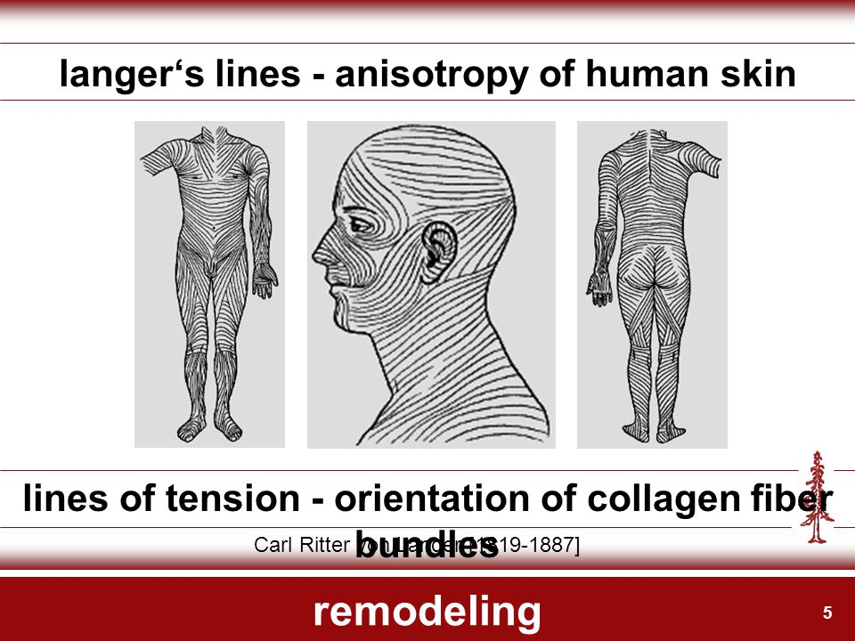 5 remodeling langer's lines - anisotropy of human skin lines of tension - orientation of collagen fiber bundles Carl Ritter von Langer [1819-1887]