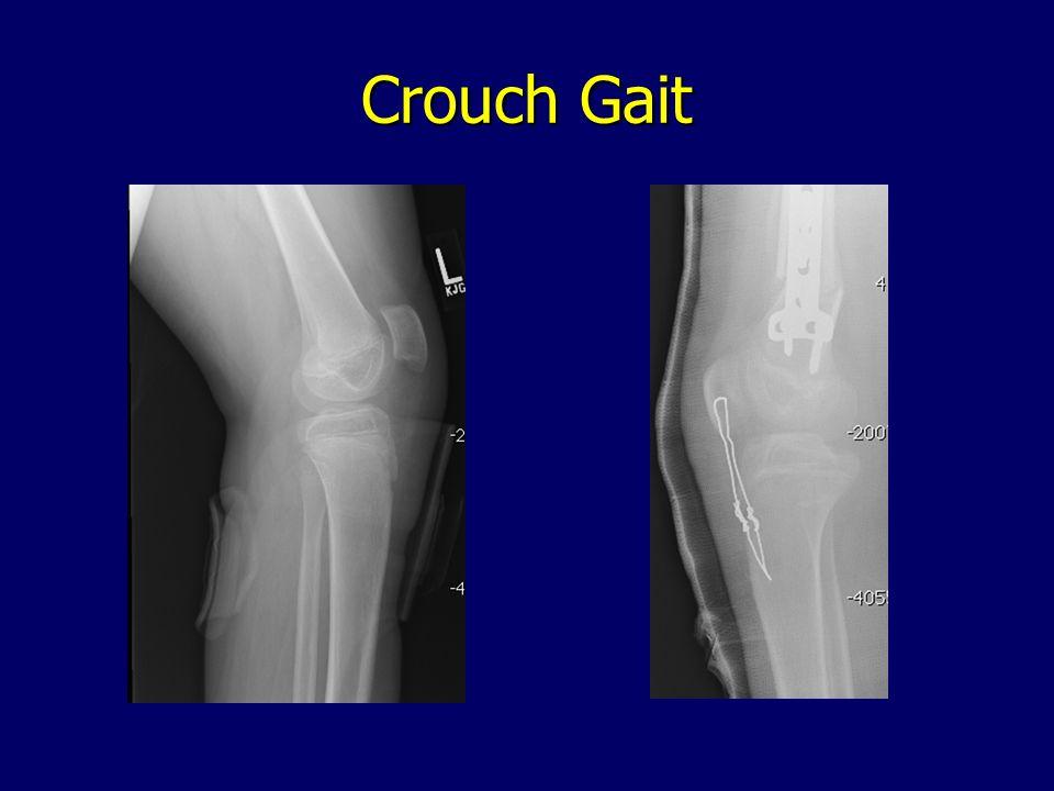Crouch Gait