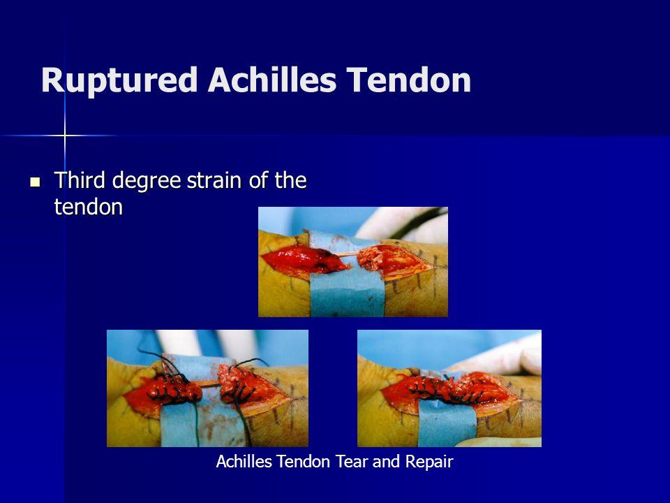 Ruptured Achilles Tendon Third degree strain of the tendon Third degree strain of the tendon Achilles Tendon Tear and Repair