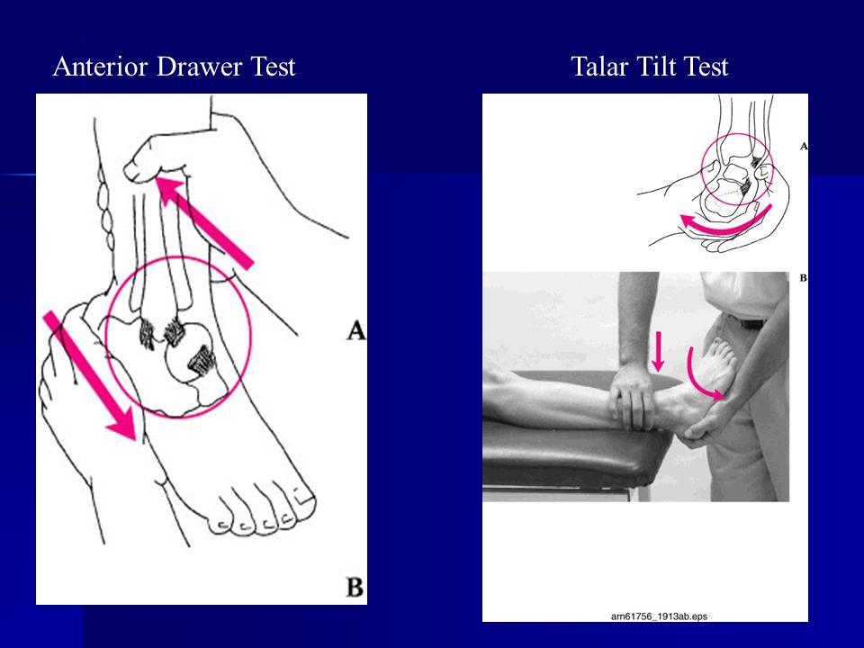Anterior Drawer TestTalar Tilt Test