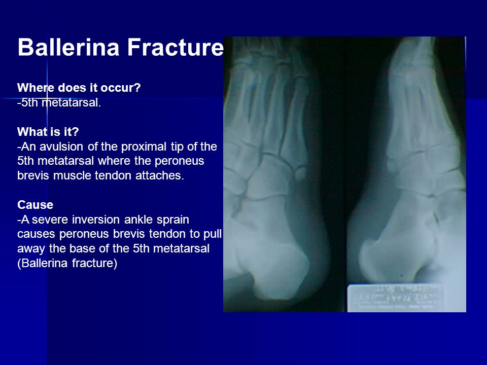 Ballerina Fracture Where does it occur? -5th metatarsal. What is it? -An avulsion of the proximal tip of the 5th metatarsal where the peroneus brevis