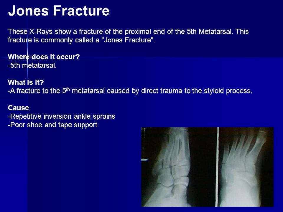 Severe Jones Fracture fix