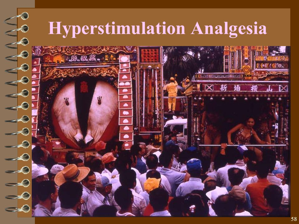 58 Hyperstimulation Analgesia