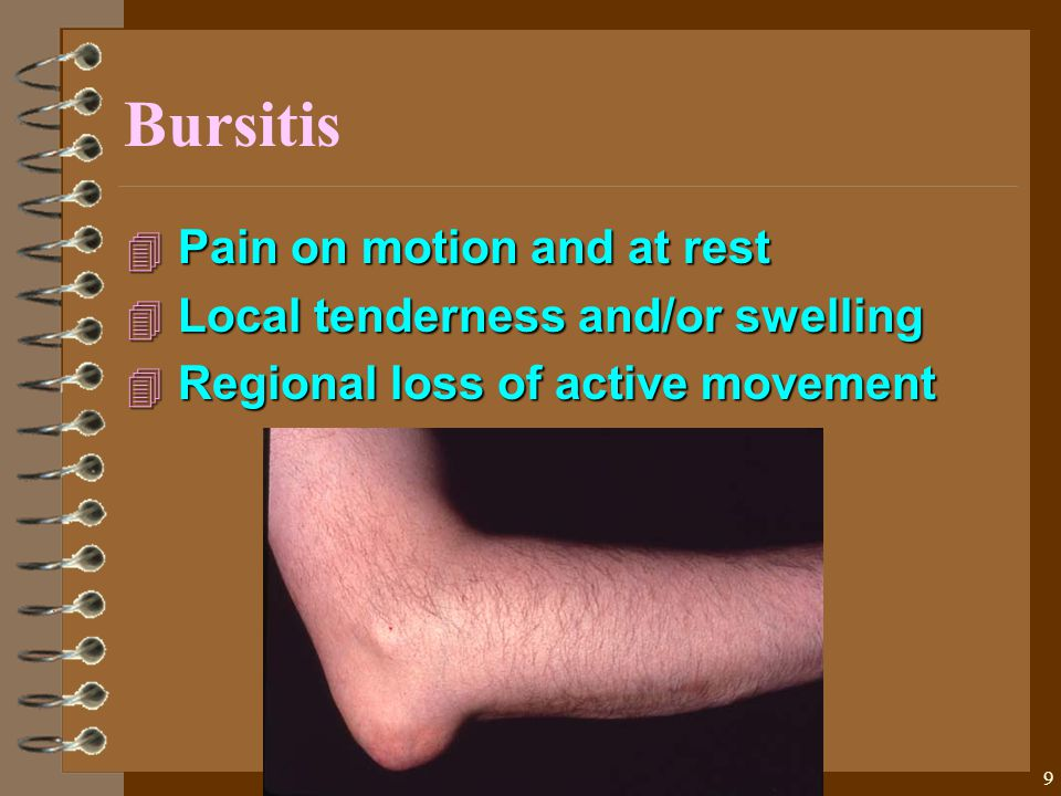 9 Bursitis 4 Pain on motion and at rest 4 Local tenderness and/or swelling 4 Regional loss of active movement