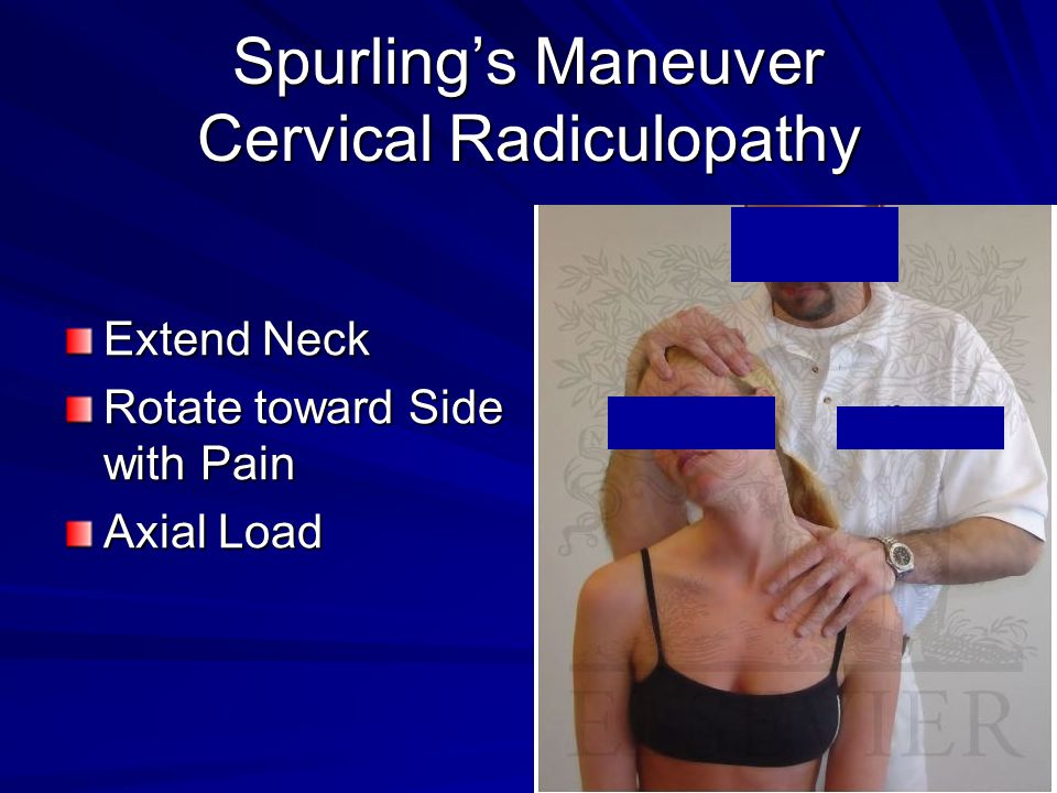 Spurling's Maneuver Cervical Radiculopathy Extend Neck Rotate toward Side with Pain Axial Load