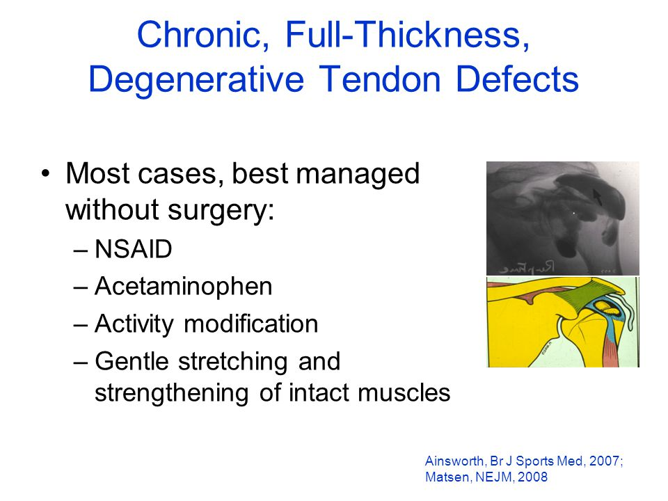 Chronic, Full-Thickness, Degenerative Tendon Defects Most cases, best managed without surgery: –NSAID –Acetaminophen –Activity modification –Gentle stretching and strengthening of intact muscles Ainsworth, Br J Sports Med, 2007; Matsen, NEJM, 2008