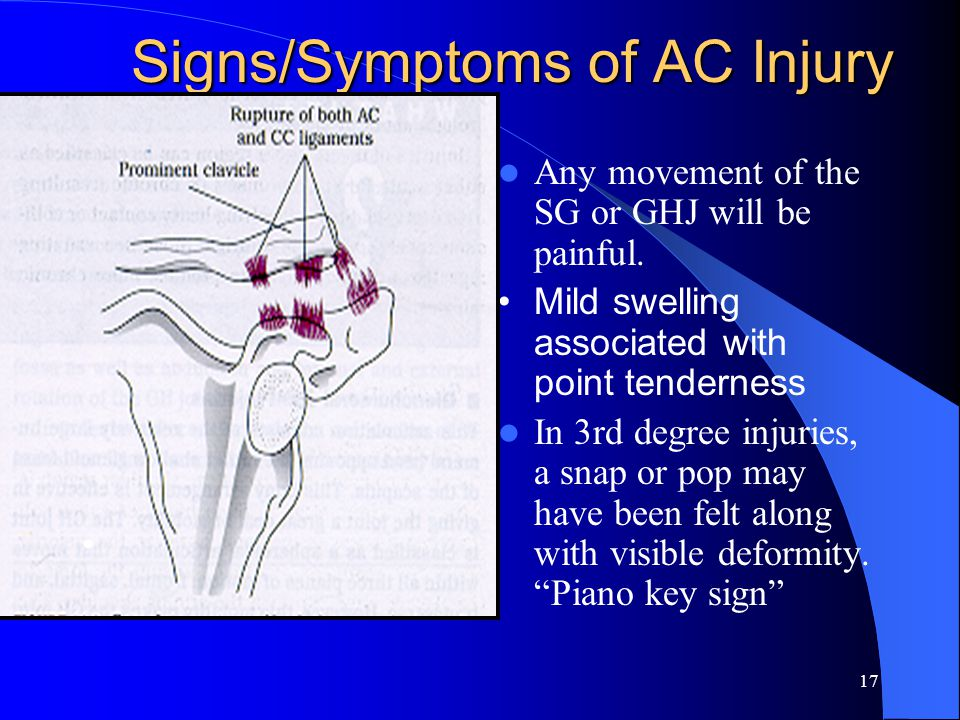 16 Acromioclavicular Injuries Mechanism -- downward blow to the lateral shoulder or fall on an outstretched arm Severity of injury is determined by th