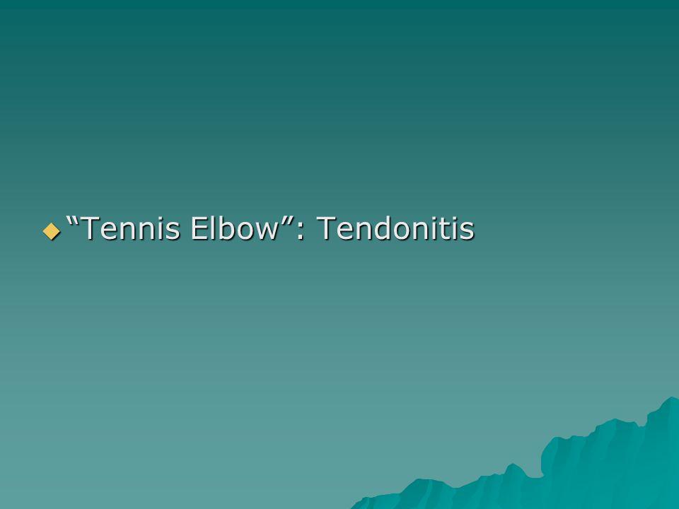 Tennis Elbow : Tendonitis