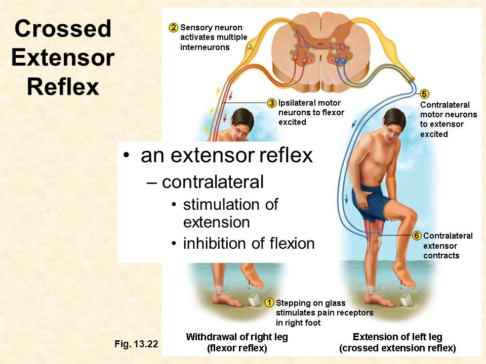 Crossed Extensor Reflex Fig.