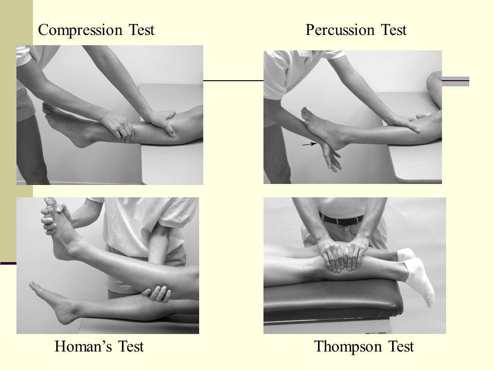 Compression TestPercussion Test Homan's TestThompson Test