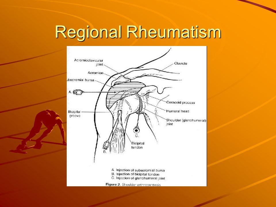 Regional Rheumatism
