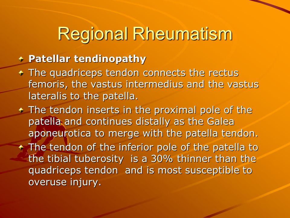 Regional Rheumatism Patellar tendinopathy The quadriceps tendon connects the rectus femoris, the vastus intermedius and the vastus lateralis to the pa
