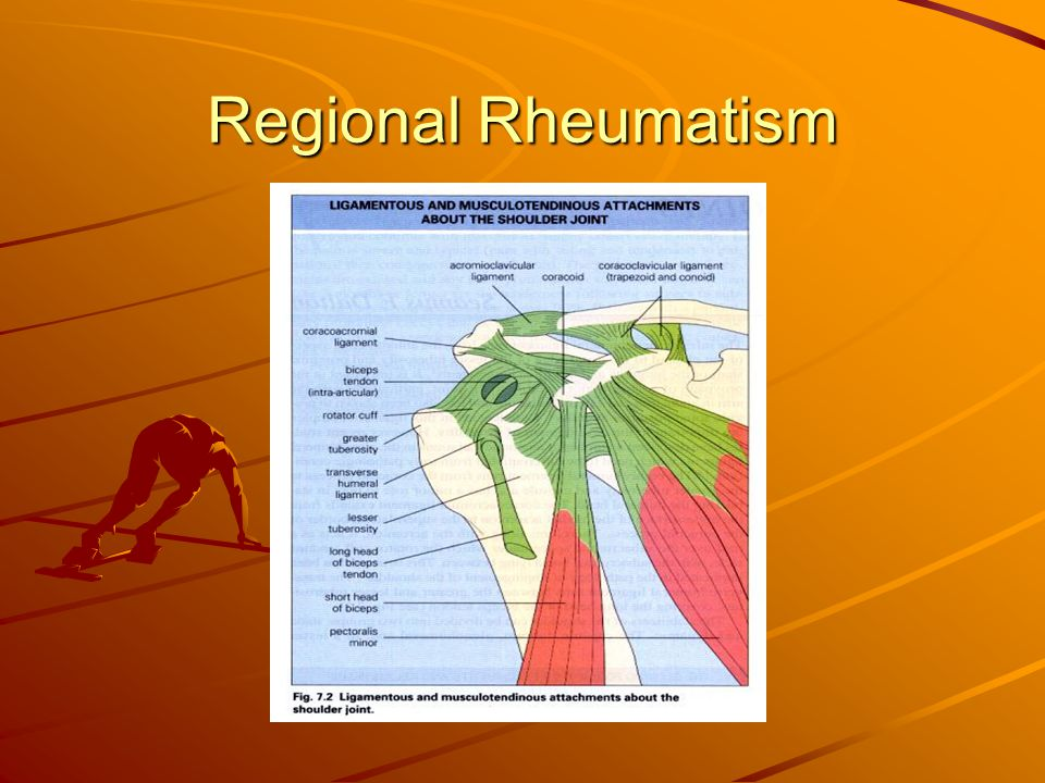 Regional Rheumatism The age of the patient suggest different diagnostic possibilities.