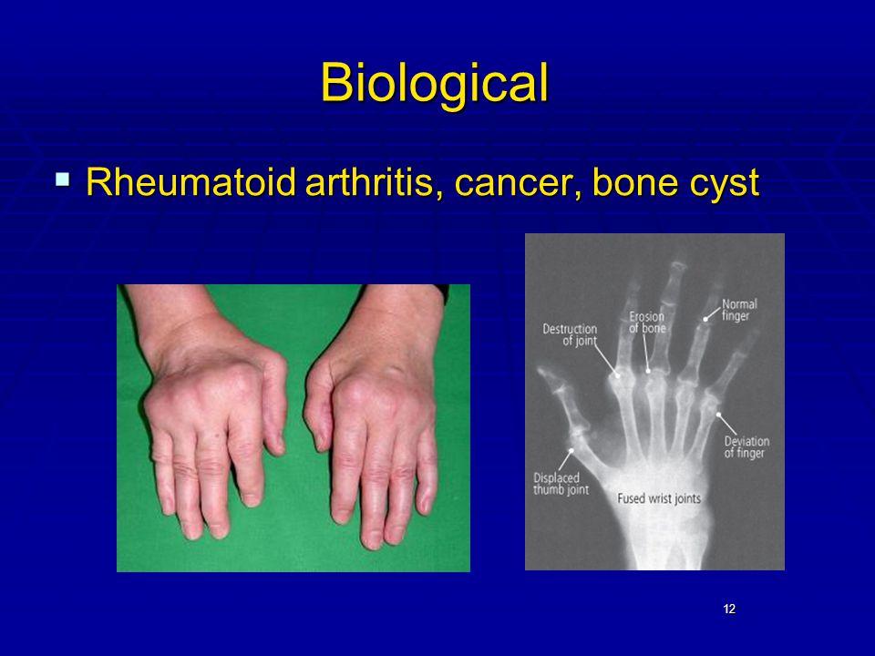 12 Biological  Rheumatoid arthritis, cancer, bone cyst