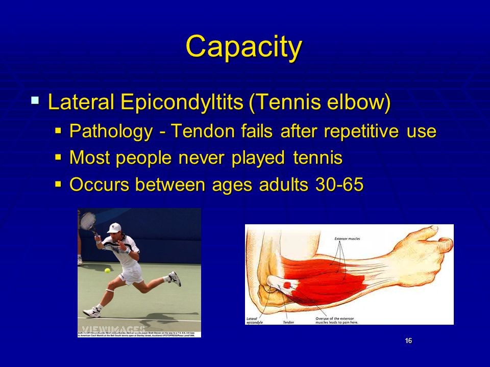 16 Capacity  Lateral Epicondyltits (Tennis elbow)  Pathology - Tendon fails after repetitive use  Most people never played tennis  Occurs between ages adults 30-65