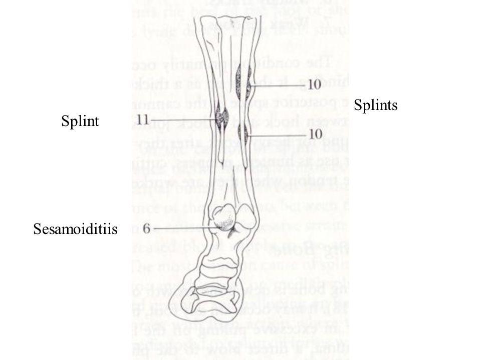 Splints Splint Sesamoiditiis