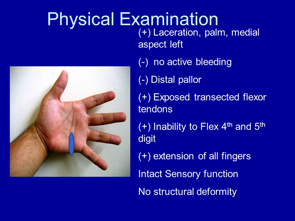 Injuries to Blood Vessels Injuries from blunt trauma usually result in thrombosis of a vessel Penetrating injuries that completely divide the vessel may be manifested by thrombosis rather than hemorrhage If the vessel is only partially divided, it contracts and will continue to bleed.