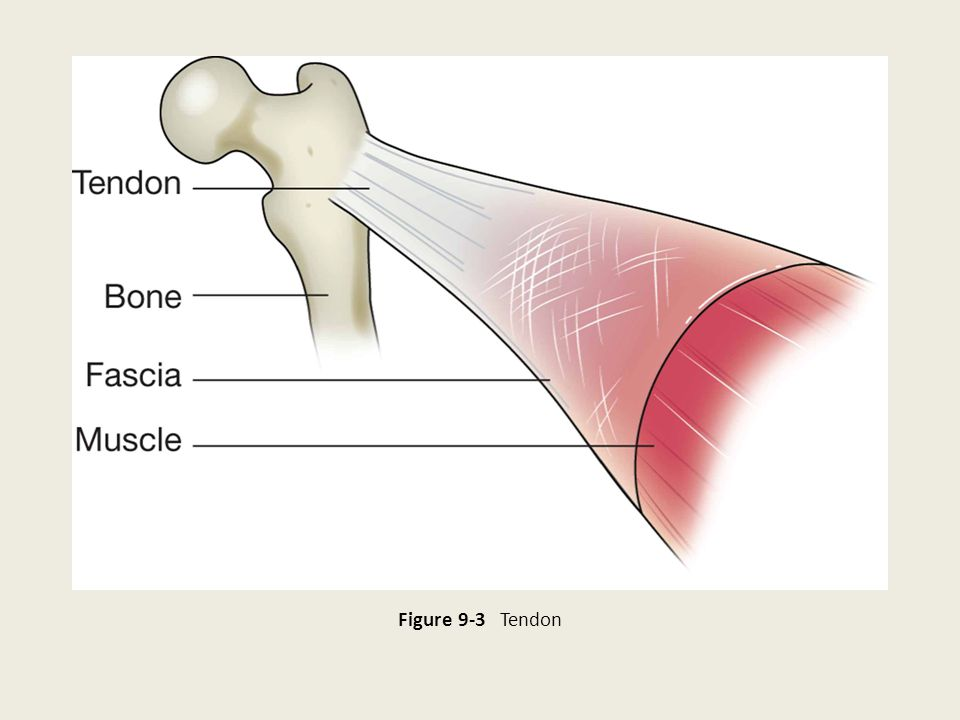Figure 9-3 Tendon