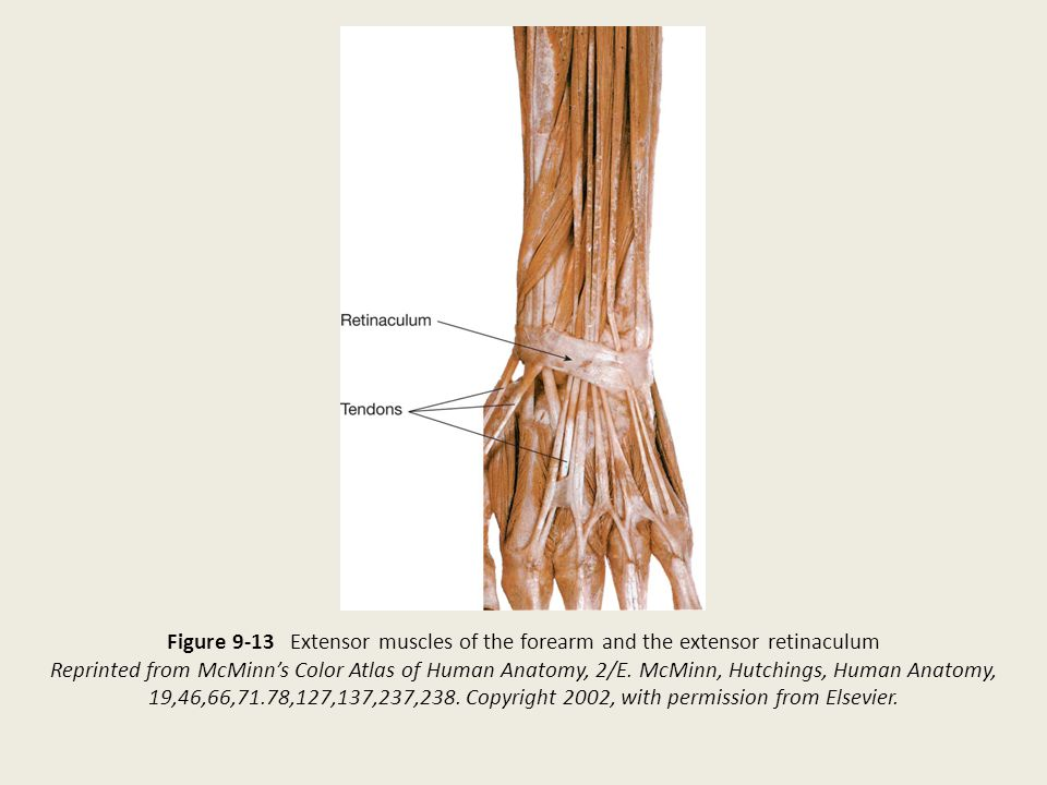 Figure 9-13 Extensor muscles of the forearm and the extensor retinaculum Reprinted from McMinn's Color Atlas of Human Anatomy, 2/E. McMinn, Hutchings,