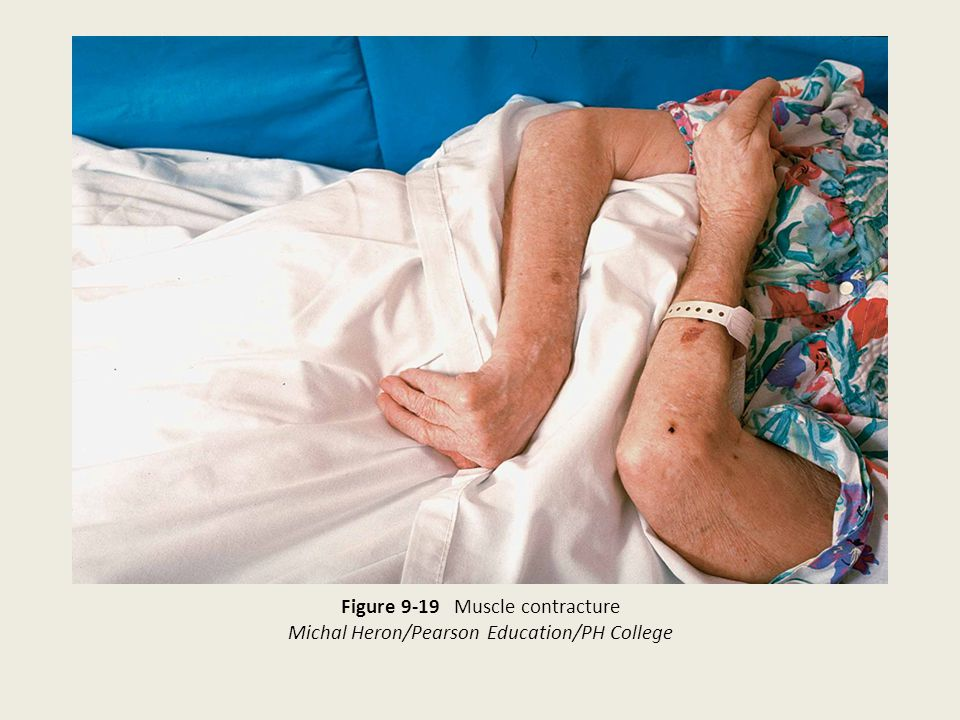 Figure 9-19 Muscle contracture Michal Heron/Pearson Education/PH College