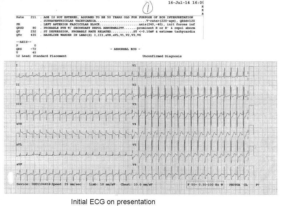 Initial ECG on presentation