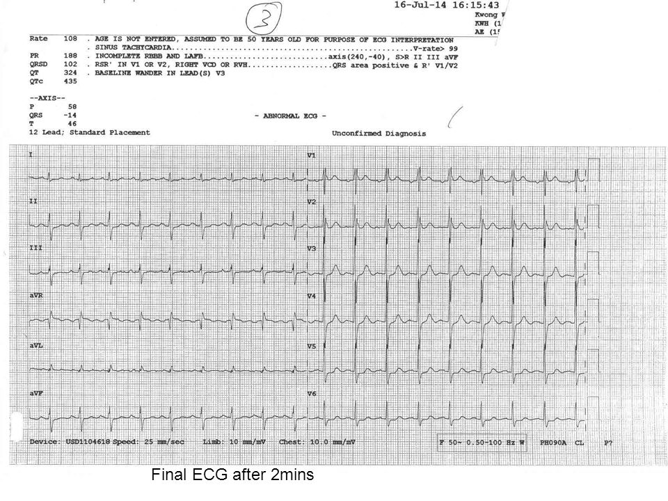 Final ECG after 2mins