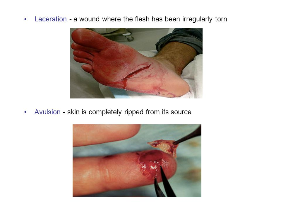 Laceration - a wound where the flesh has been irregularly torn Avulsion - skin is completely ripped from its source