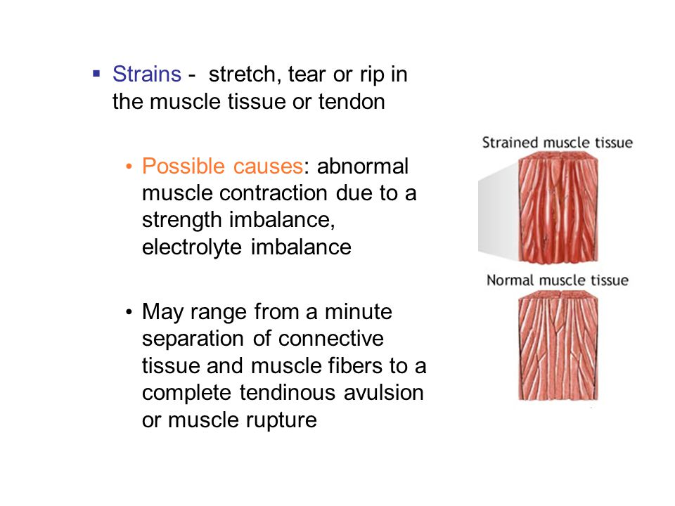  Strains - stretch, tear or rip in the muscle tissue or tendon Possible causes: abnormal muscle contraction due to a strength imbalance, electrolyte imbalance May range from a minute separation of connective tissue and muscle fibers to a complete tendinous avulsion or muscle rupture