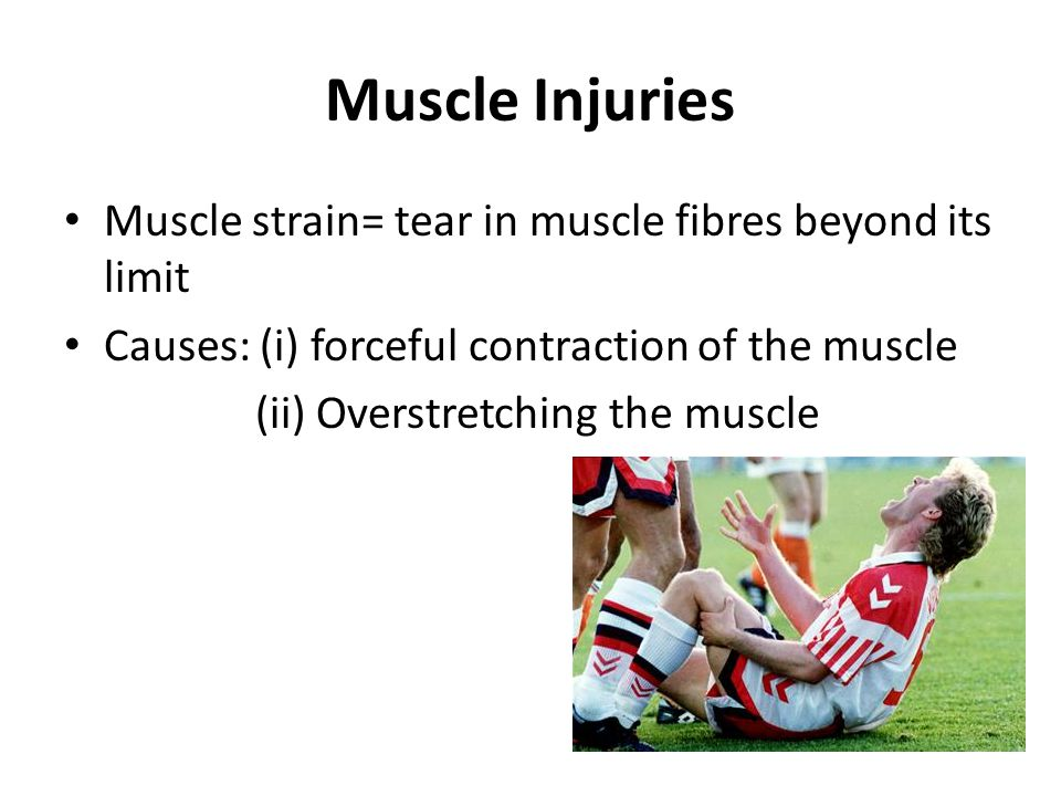 Muscle Injuries Muscle strain= tear in muscle fibres beyond its limit Causes: (i) forceful contraction of the muscle (ii) Overstretching the muscle