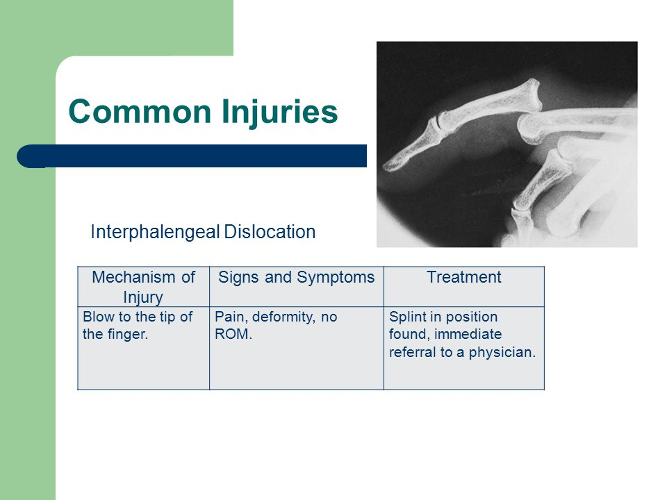 Common Injuries Mechanism of Injury Signs and SymptomsTreatment Blow to the tip of the finger. Pain, deformity, no ROM. Splint in position found, imme