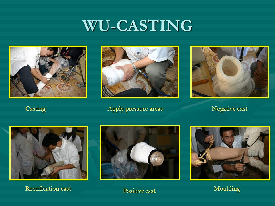 WU-CASTING Casting Apply pressure areas Negative cast Rectification cast Positive cast Moulding