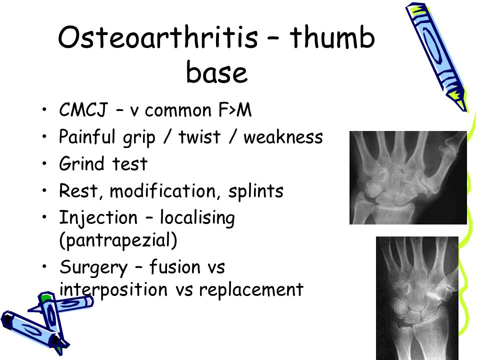 Osteoarthritis – thumb base CMCJ – v common F>M Painful grip / twist / weakness Grind test Rest, modification, splints Injection – localising (pantrapezial) Surgery – fusion vs interposition vs replacement