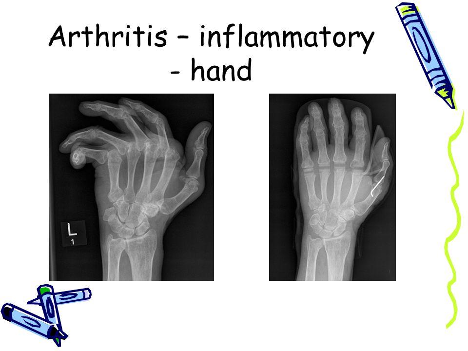 Arthritis – inflammatory - hand